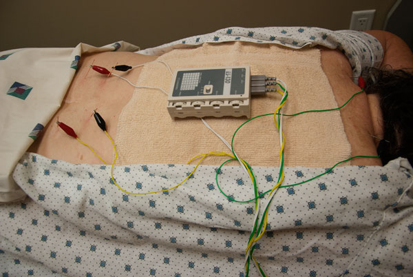 electroacupuncture device used in physiotherapy clinics
